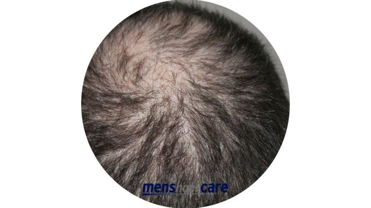 How long does Finasteride take to work for men