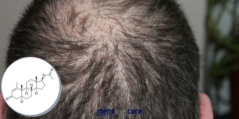 How long does Finasteride take to work