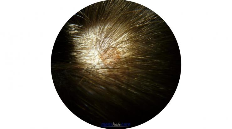 Men's Shampoo for Sensitive Scalp